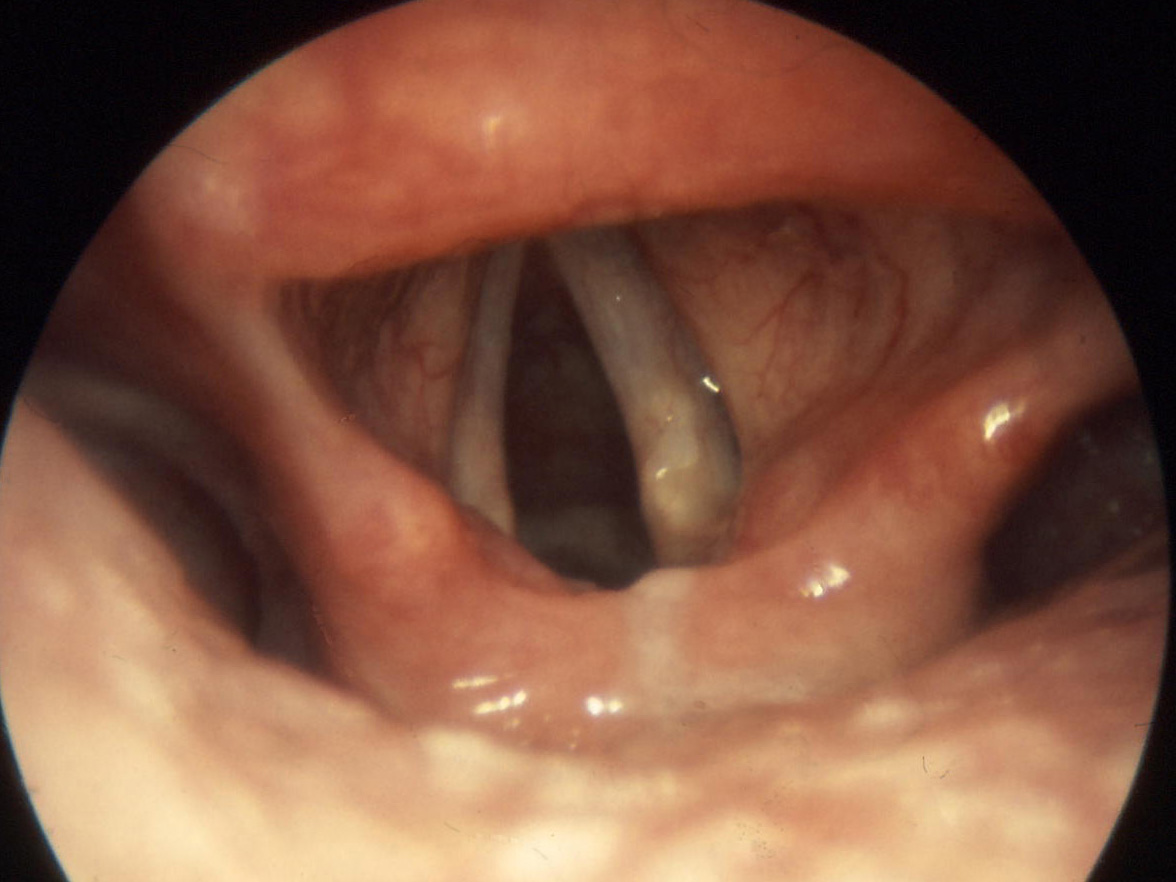 Real human esophagus - photo#7