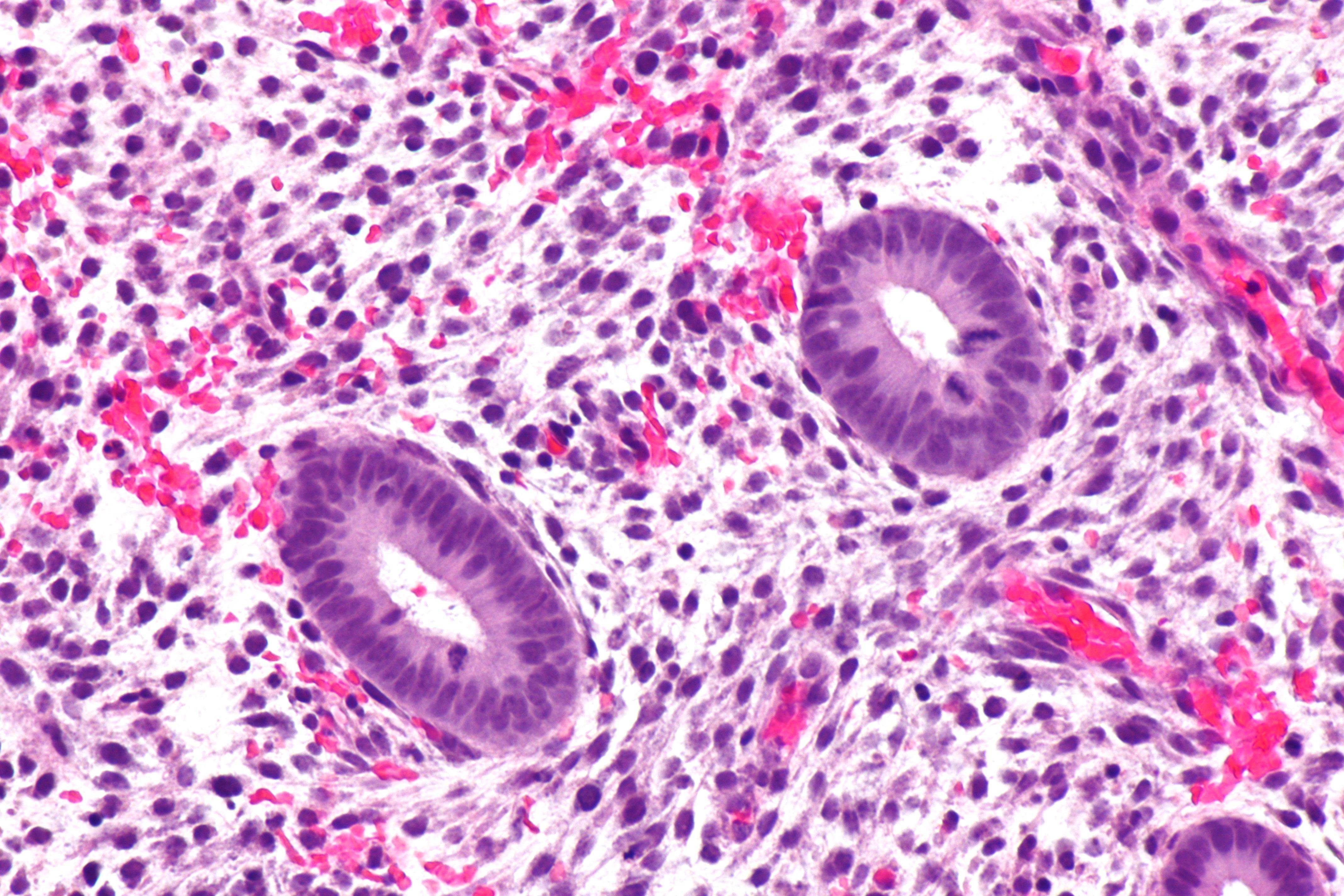 File:Proliferative endometrium - very high mag.jpg ...