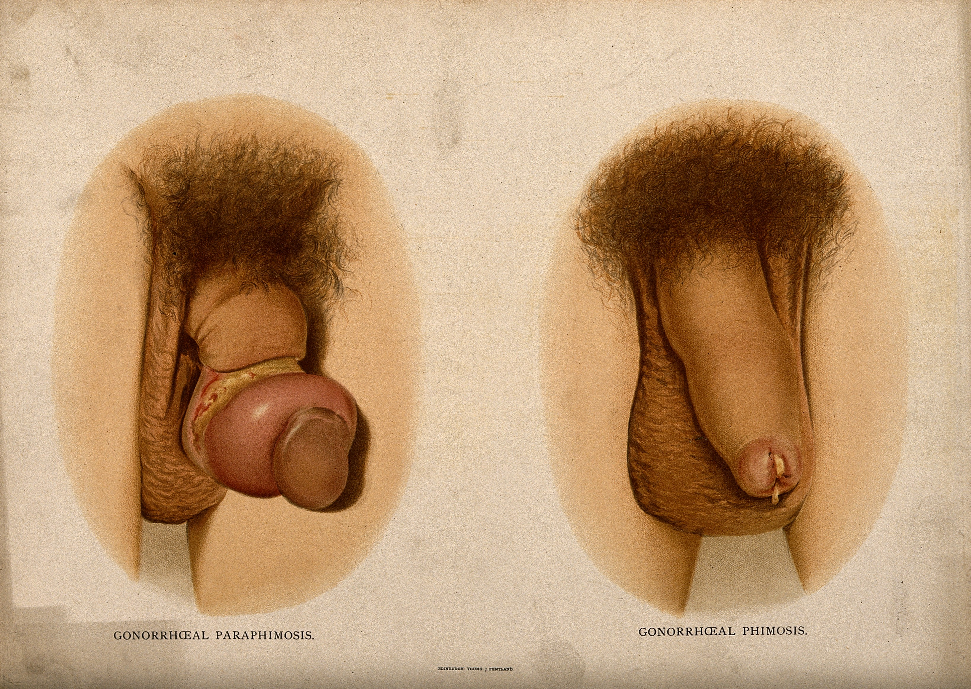 NSFW - Man born with two penises erect picture Mamamia
