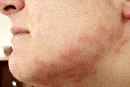 Bedbug bites