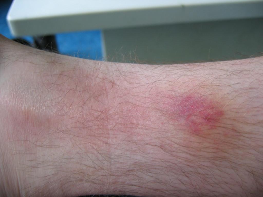 infectie aan luchtwegen symptomen