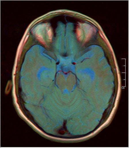 Brain MRI 0199 14.jpg