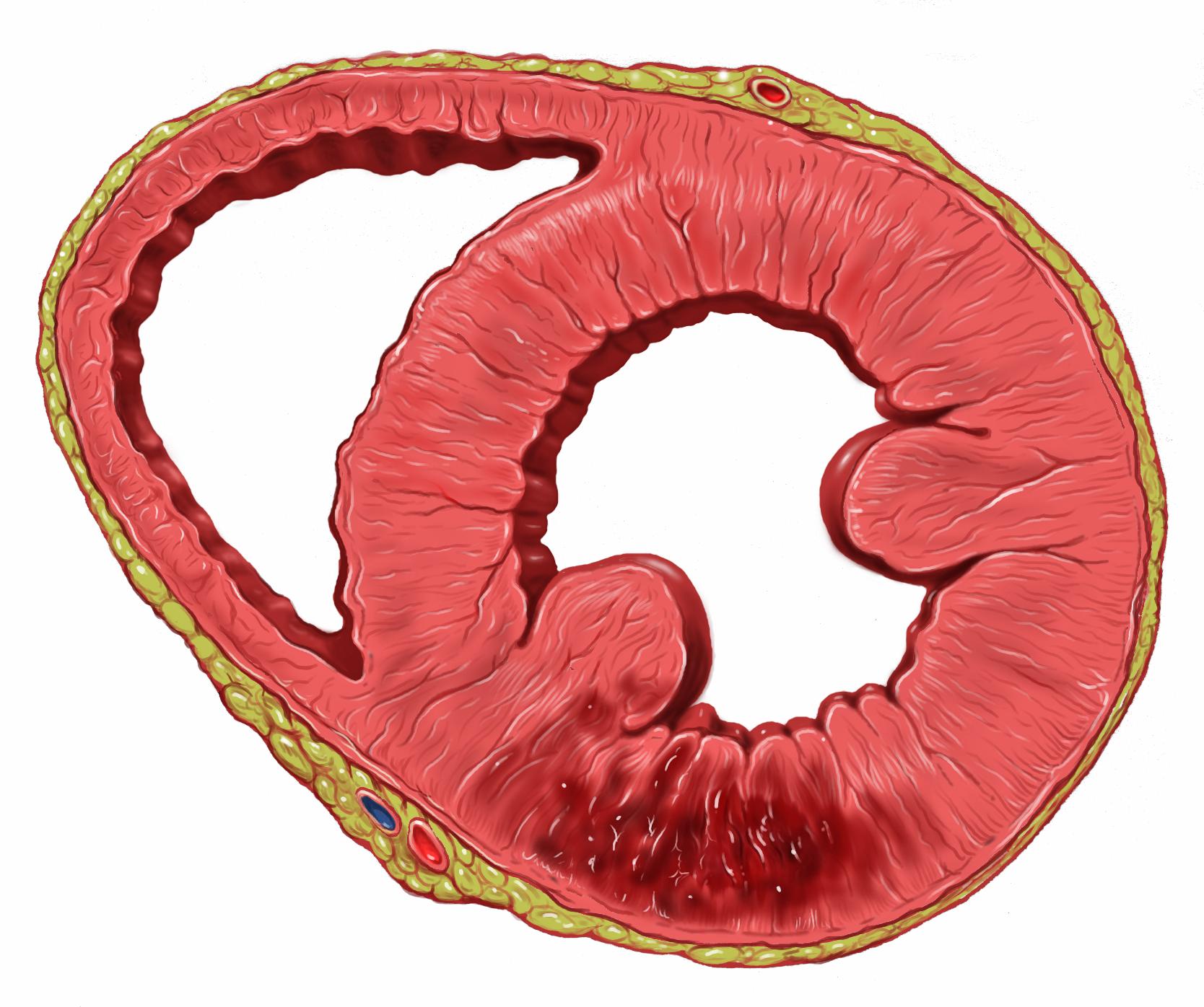 File:Heart inferior wall infarct.jpg - Wikimedia Commons