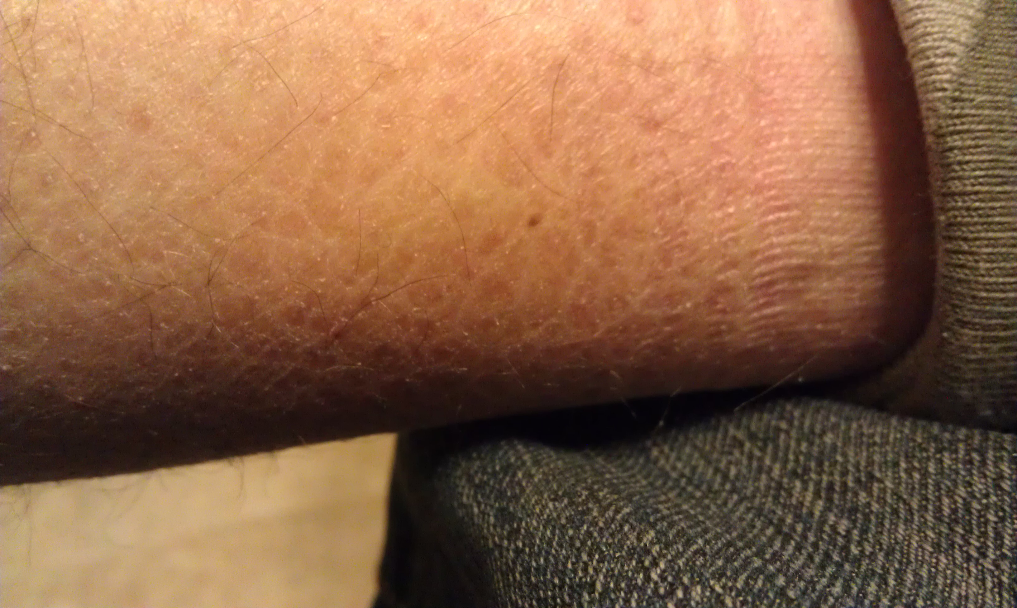 Dry Scaly Spots On Leg