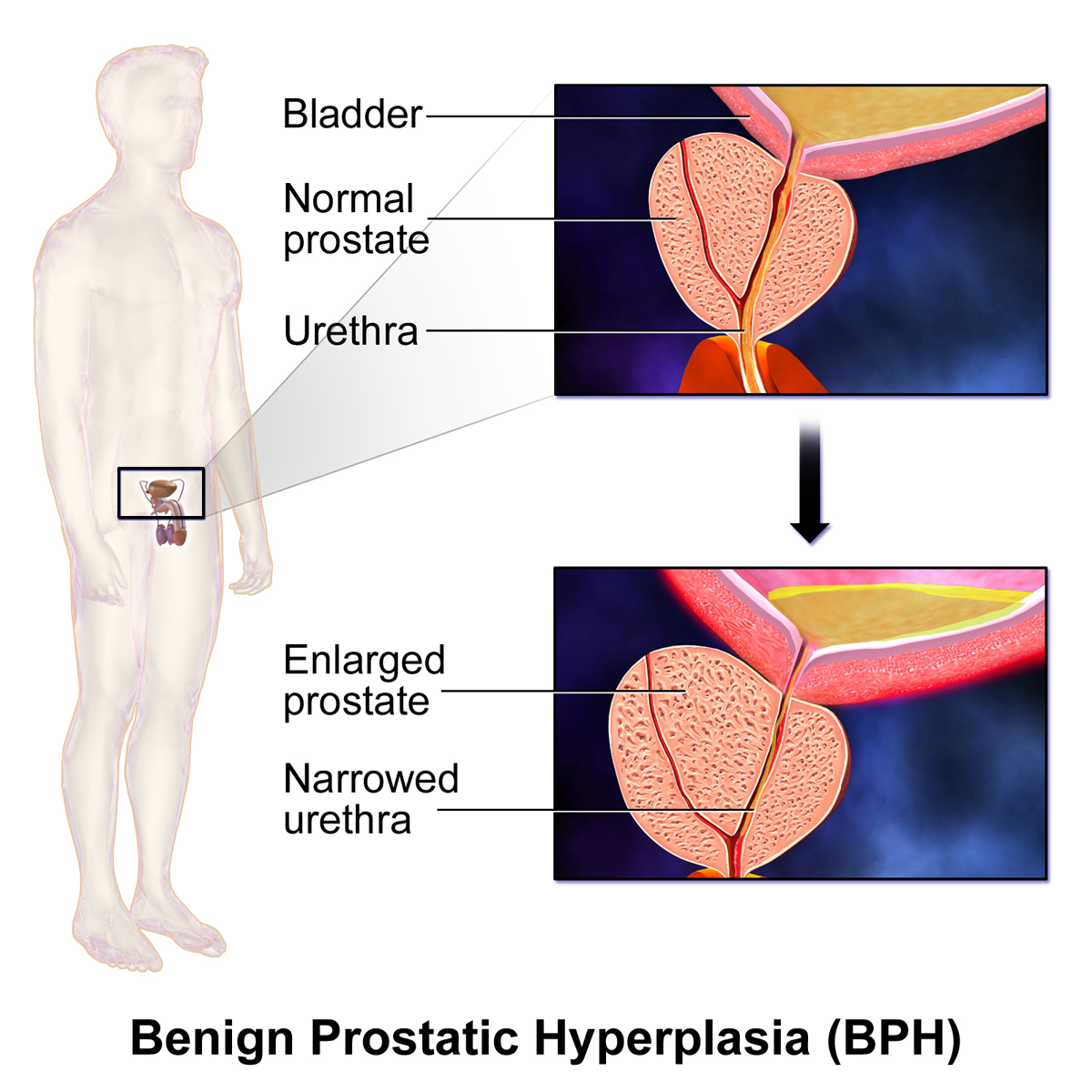 essays on benign prostate hyperplasia Figure 309 benign prostate hyperplasia a and b: axial scans of patients with bph note the heterogeneous echotexture of the inner gland (arrow) representing bph affecting the transition zone.