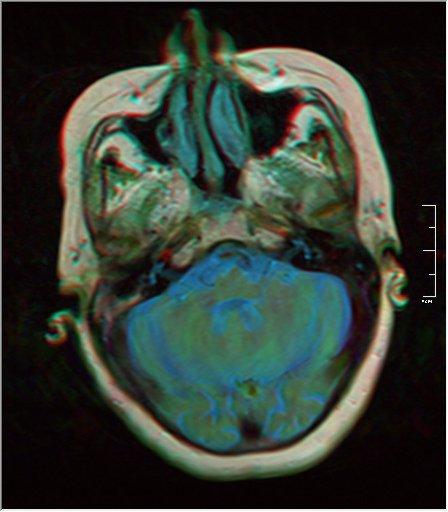 Brain MRI 0052 15.jpg