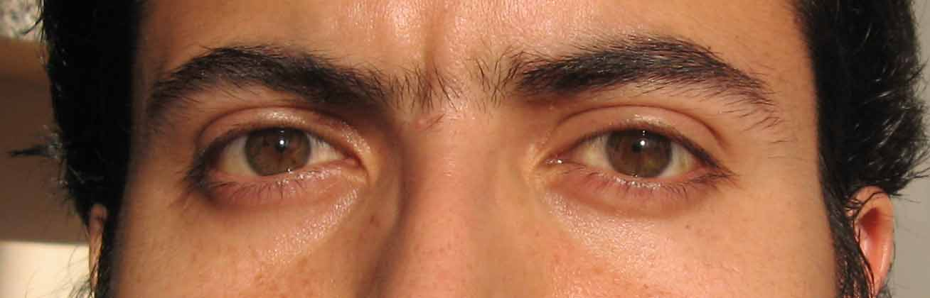 What Color Eyes Are The Most Sensitive To Light