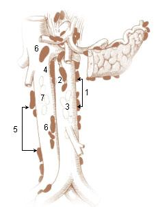 Preaortic lymph node wikipedia illu lymph chain07g ccuart Gallery