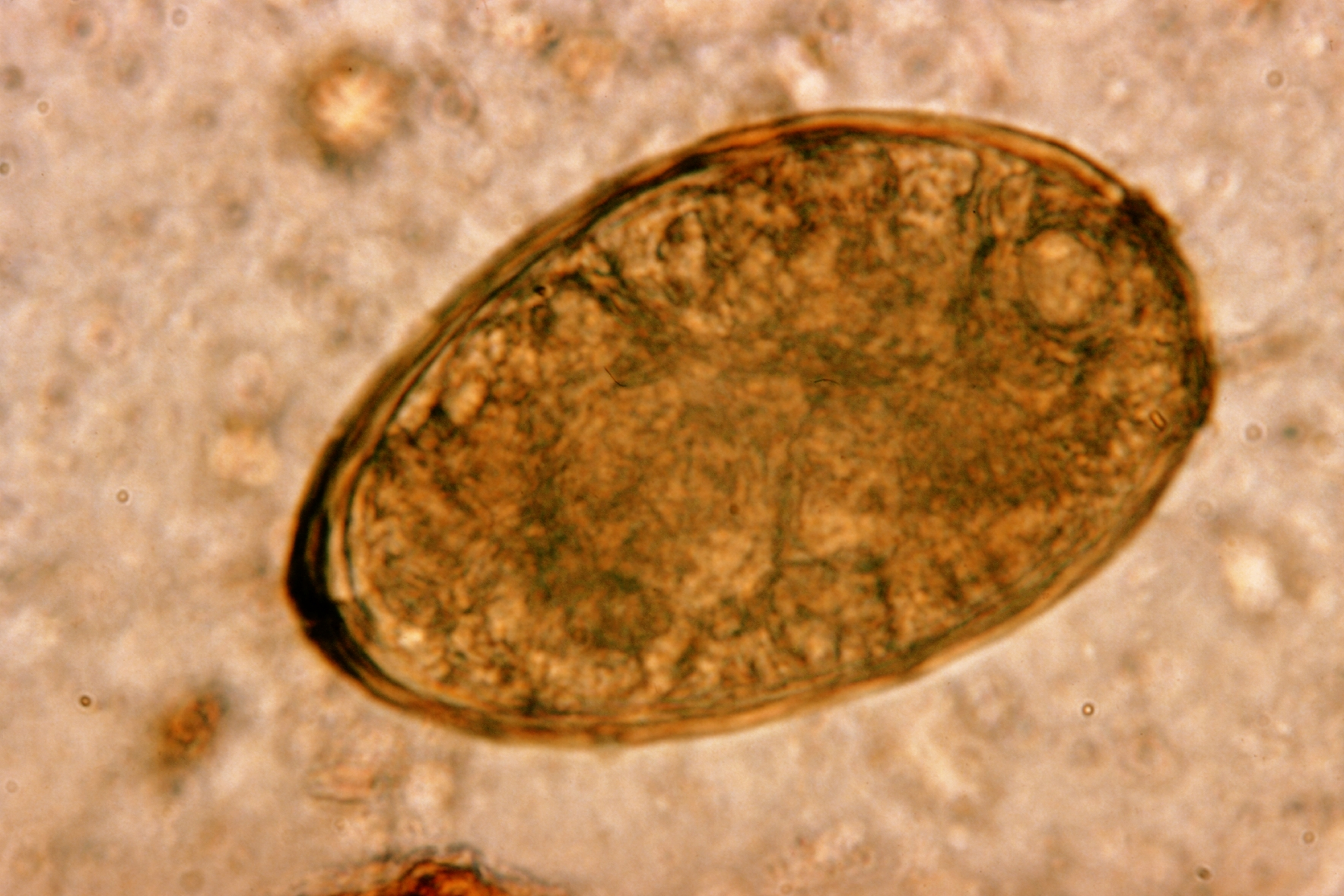 paragonimus kellicotti worm - photo #10