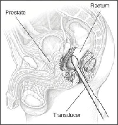 prostate 뜻