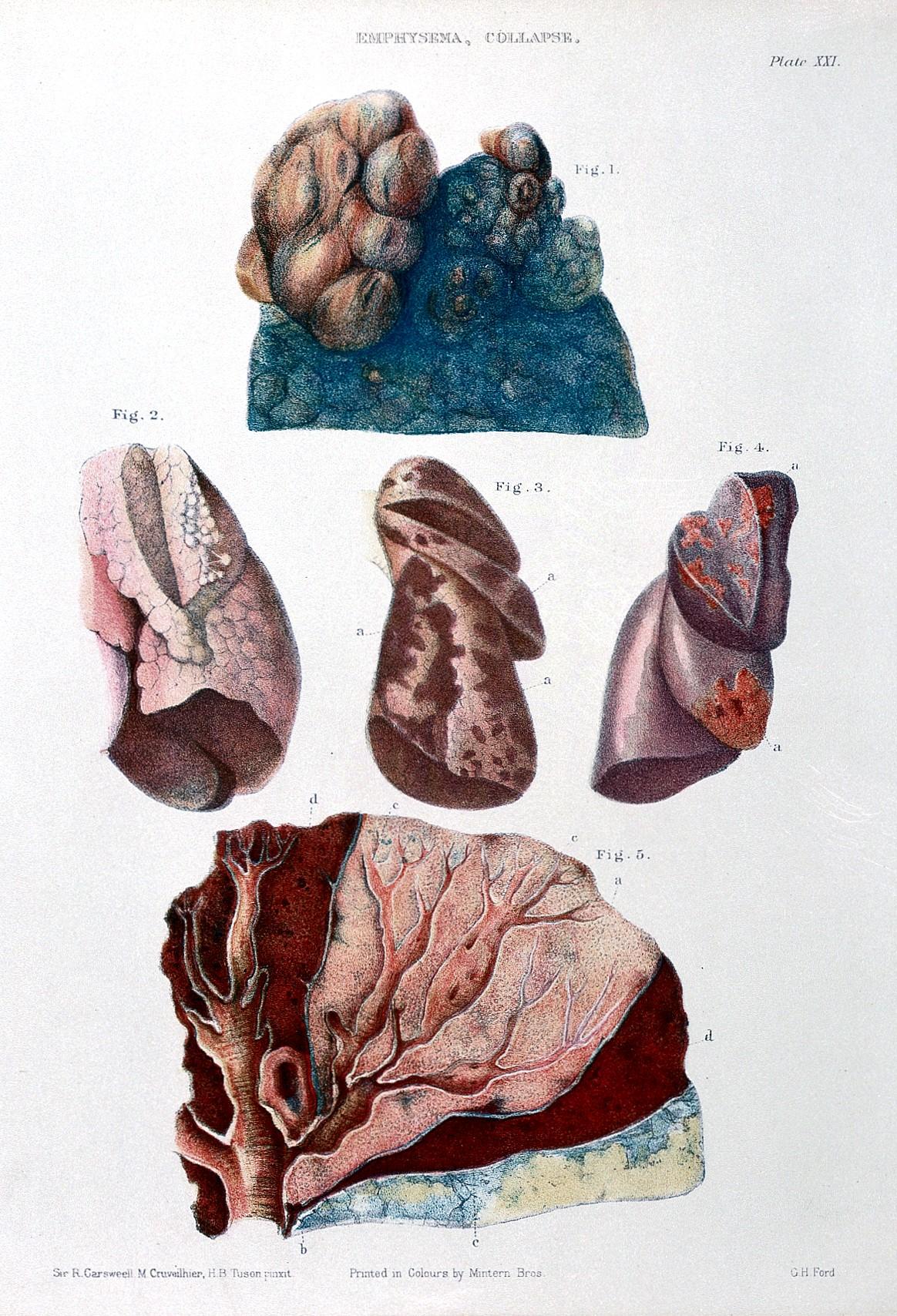File:W. Fox, Pathological anatomy of the lungs; emphysema Wellcome ...
