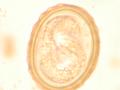 Ascaris Larva.png