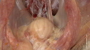 Infectious bursal disease - Enlarged bursa of Fabricius with yellowish peribursal oedema