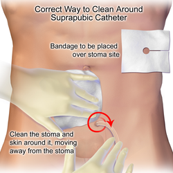 How to properly clean around a suprapubic catheter.