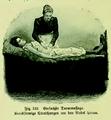 Die Frau als Hausärztin (1911) 132 Einfache Darmmassage.png