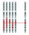 Disease Gene Mapping with Multiple Chromosomes.jpg