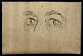 Eyes expressing a noble and magnanimous character with an or Wellcome V0009234EBR.jpg