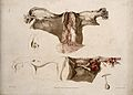 Four sections of diseased uterus. Colour aquatint by C. J. C Wellcome V0009803.jpg