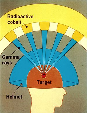 English: NRC Graphic of the Leksell Gamma Knife.