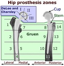 Hip replacement - Wikipedia