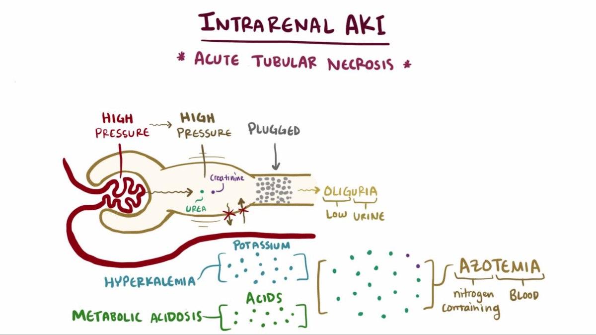 File Intrarenal Acute Kidney Injury Webm Wikimedia Commons