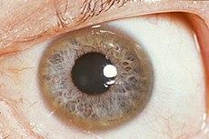 Kayser-Fleischer ring.jpg
