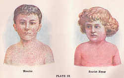 Measles and Scarlet Fever (3796080398).jpg