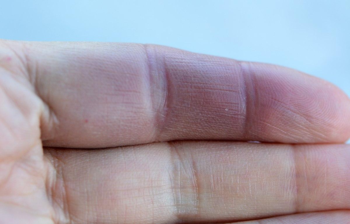 ecchymose doigt