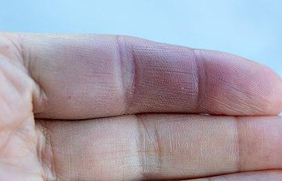 Paroxysmal hand hematoma Achenbach syndrome doigt bleu 02.jpg