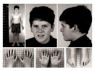 Prader–Willi syndrome - Wikipedia