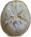 Skull fracture - Wikipedia