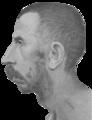 Schizophrenia congenital idiot, age 39. Asthenic. Profile.png
