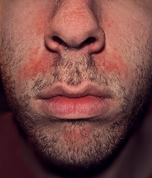 Rash face after oral sex