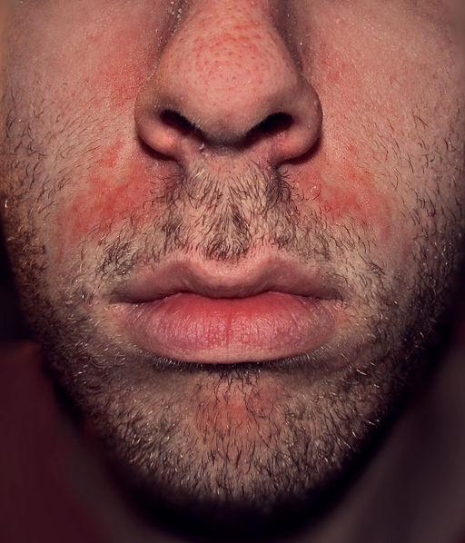 Seborrhoeic dermatitis highres