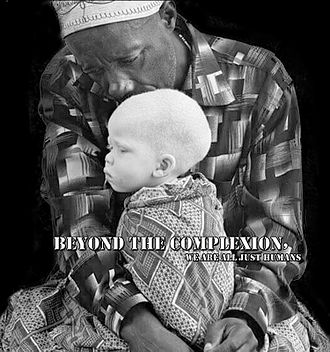 Persecution of people with albinism - Awareness poster against the prejudice of albinos in Africa