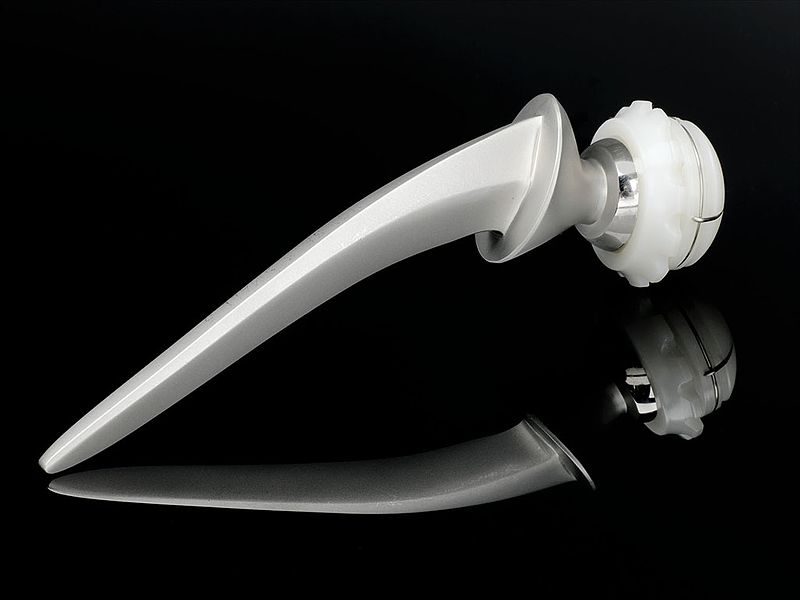 Stainless steel and ultra high molecular weight polythene hip replacement (9672239334).jpg