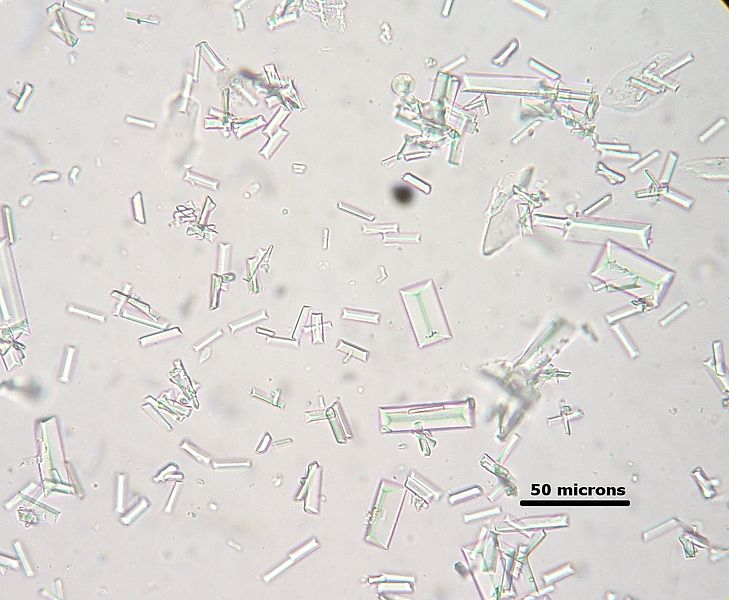 Struvite Crystals from Dog Urine