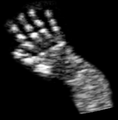 Ultrasound Scan ND 0118100812 A.png