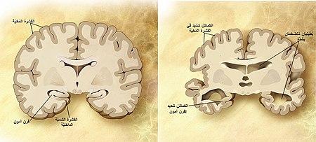 مقارنةٌ بين دماغٍ سليم في مرحلة الشيخوخة (اليسار) ودماغٍ لشخصٍ مصابٍ بآلزهايمر (اليمين). تظهرُ الفروقات بين الدماغين على الصُورة.