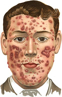 An introduction to dermatology (1905) Acne (indurta).jpg