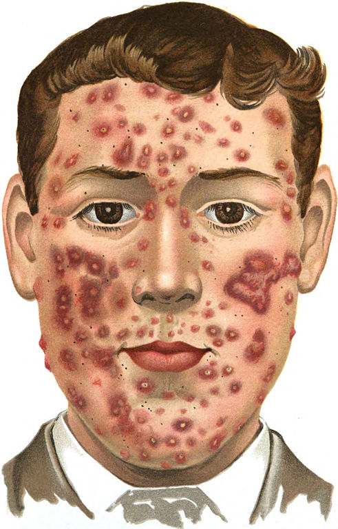 https://upload.wikimedia.org/wikipedia/commons/thumb/0/01/An_introduction_to_dermatology_(1905)_Acne_(indurta).jpg/491px-An_introduction_to_dermatology_(1905)_Acne_(indurta).jpg