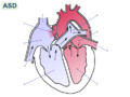 Atrial septal defect-null.png