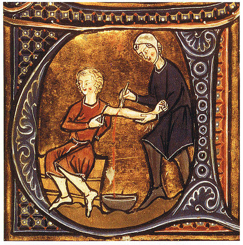 13th century illustration of bloodletting - Bloodletting