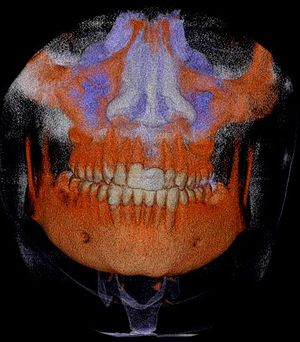 CBCT surface rendering of a skull