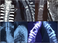 CervicothoracicspinalTB-scan.png