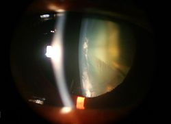 Cataract Wikipedia