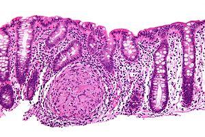 Esophagus - intermed mag. Image:Crohn's diseas...