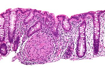 English: Esophagus - intermed mag. Image:Crohn...