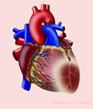 De-Heart with AL infarct (CardioNetworks ECGpedia).png