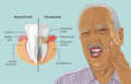 Depiction of a Periodontitis patient.png